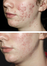 Acne Treatment at SkinGenesis - Before & After