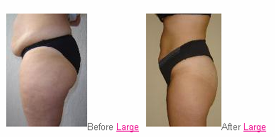 Fat Reduction and Cellulite Treatment | Beauty and Your Skin